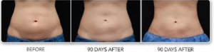 Coolsculpting at Estetica Institute