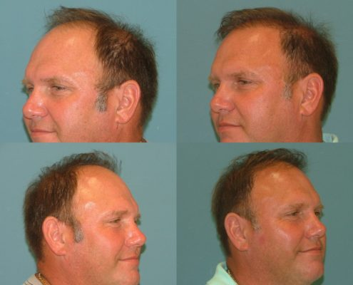 Before and After Hair Restoration at Estetica Institute of the Palm Beaches