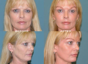 Laser Skin Resurfacing Before and After at Estetica Institute of the Palm Beaches