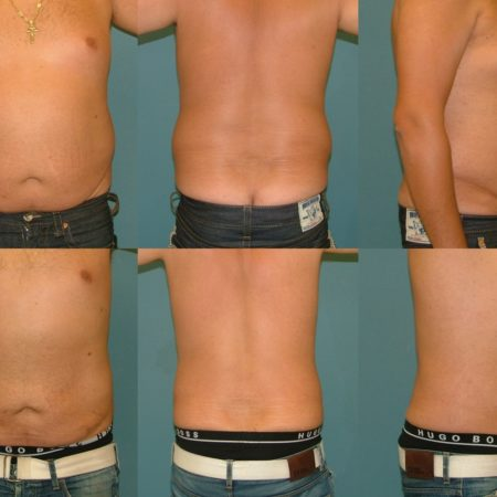 Liposuction Before and After at Estetica Institute of the Palm Beaches