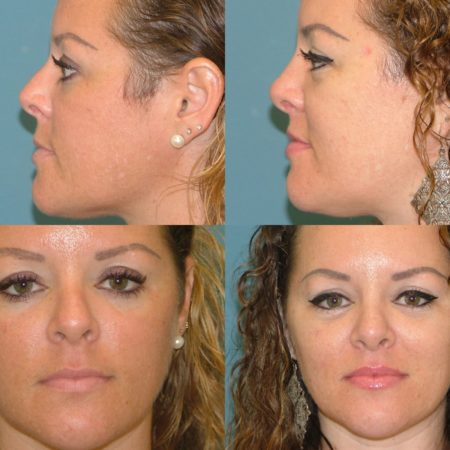 Nose Surgery Before and After at Estetica Institute of the Palm Beaches