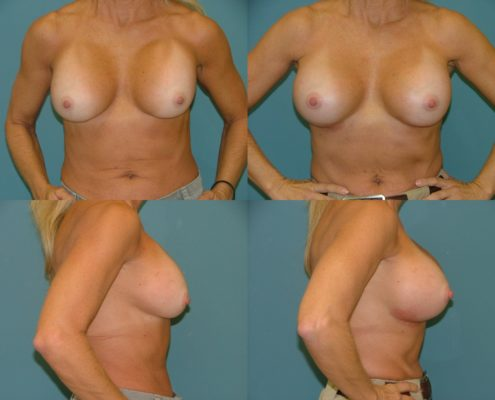 Breast Implant Revision and Repair
