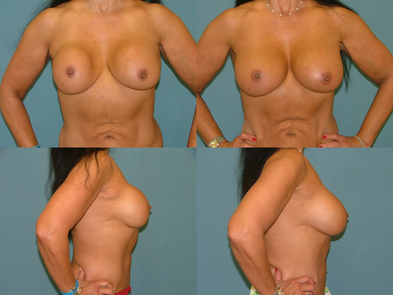 Breast Augmentation Revision Repair