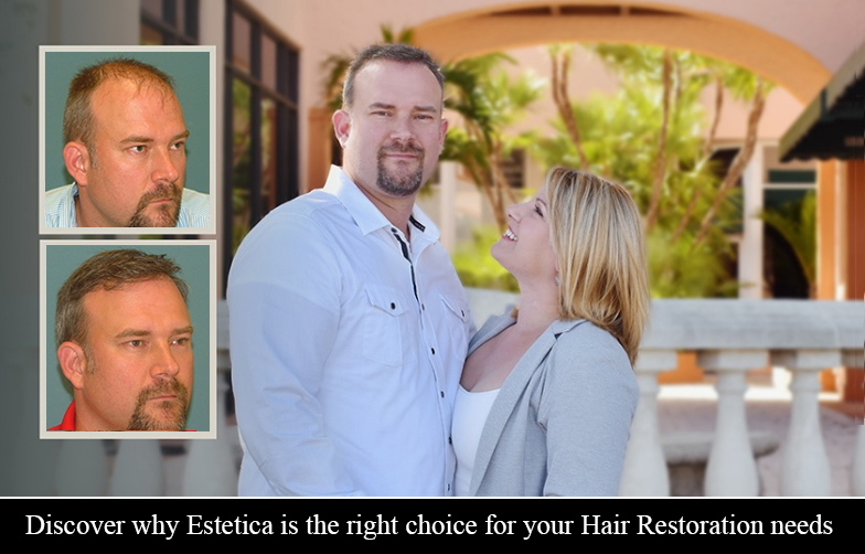 Hair Transplantation South Florida at Estetica Institute of the Palm Beaches