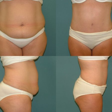 Liposuction at Estetica Institute of the Palm Beaches
