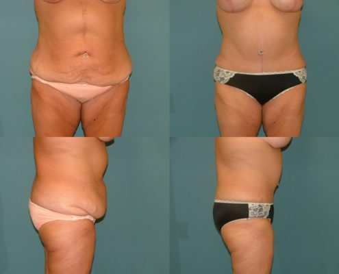 Plastic Surgery West Palm Beach