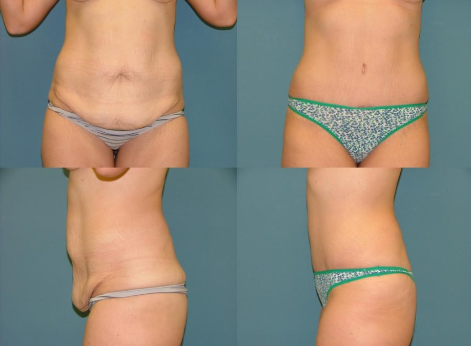 Tummy Tuck before and after at Estetica Institute of the Palm Beaches