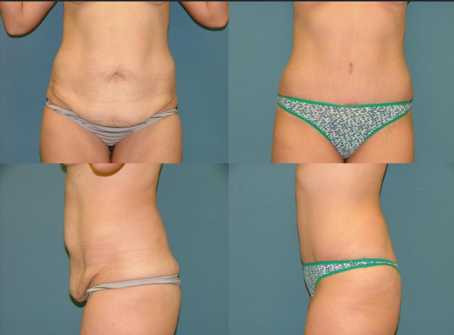 Tummy Tuck Surgery removes excess fat and skin from the abdomen