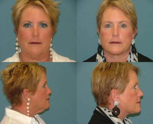 Face and Neck Lift at Estetica Institute of the Palm Beaches