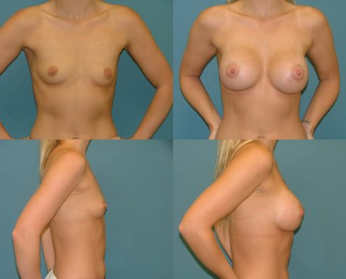 Breast Augmentation in West Palm Beach at Estetica Institute of the Palm Beaches