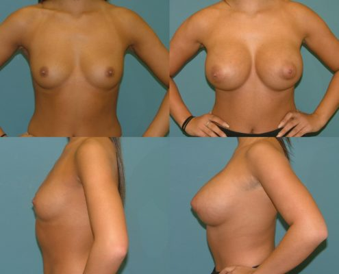 Breast Augmentation at Estetica Institute of the Palm Beaches