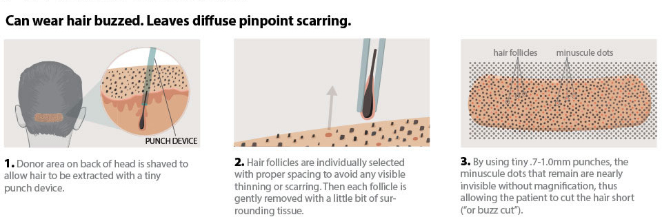 Follicular Unit Extraction
