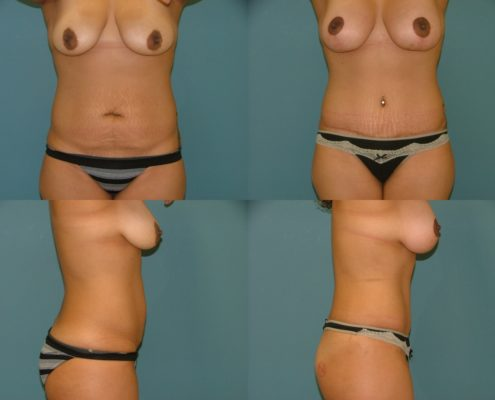 Tummy Tuck at Estetica Institute of the Palm Beaches