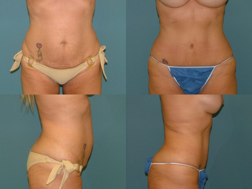 Tummy Tuck Surgery Removes Excess Fat And Skin From The