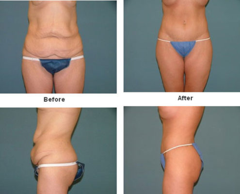 Body Lift Tummy Tuck