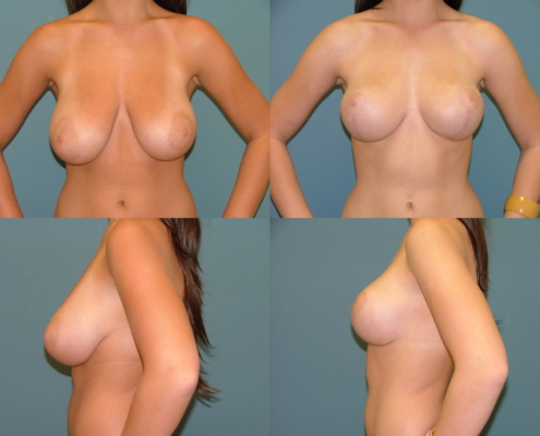 Breast Lift at Estetica Institute
