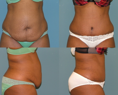 Abdominoplasty - Tummy Tuck - Estetica Institute