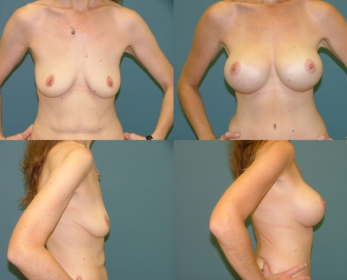 Breast Augmentation at Estetica Institute