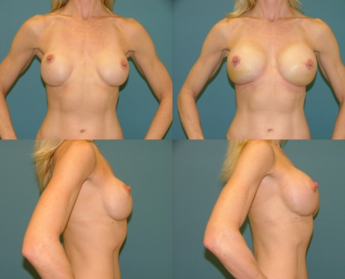 Breast Augmentation Estetica Institute