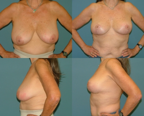 Breast Lift Estetica Institute