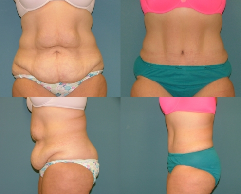 Tummy Tuck Estetica Institute